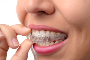Schiene- Zahnarztpraxis Dr. Rebecca Bell